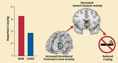 """Photo: Brain imaging reveals changes when smokers focus on long-term consequences of using tobacco. Find out when: http://1.usa.gov/J1K4UG  Illustration Caption: Scans Show Effects of Craving Regulation in the Brain When study participants thought of the long-term negative consequences of cigarette consumption (after receiving the instruction """"LATER""""), rather than short-term pleasures (""""NOW""""), they reduced their craving. Brain scans showed increased activity in the dorsolateral prefrontal cortex—a region critical to setting goals, planning, and controlling behavior—which, in turn, inhibited the ventral striatum, part of the reward pathway that generates craving."""