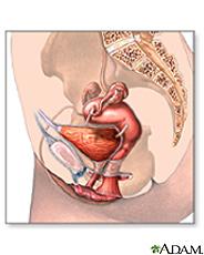 Ilustración del sistema urinario y reproductor femenino