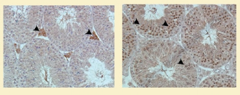 This pair of micrographs shows cannabinoid receptors in mice testes cells. In the picture on the left, arrowheads point to cannabinoid 1 receptors, while in the picture on the right they point to cannabinoid 2 receptors.