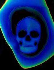 Thermal image of a skull