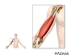 Ilustración de músculos del brazo
