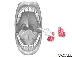 Ilustración de una tonsilectomía