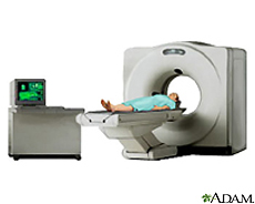 Illustration of a patient in a CT scanner