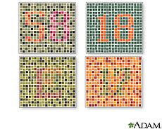 Ilustración de diversas pruebas para el daltonismo