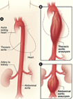 image of illustration of aortic aneurysm