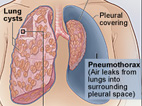 illustration showing lung cysts, collapsed lung and pneumothorax potentially associated with LAM