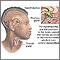 Brain-thyroid link