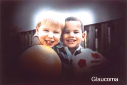 A photograph of two boys darkened around the edges to represent eyesight with Glaucoma