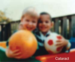 A photograph of two boys blurred to represent eyesight with Cataracts.