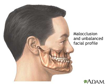 Malocclusion of teeth