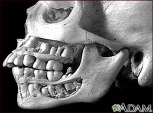 Teeth, adult - in the skull