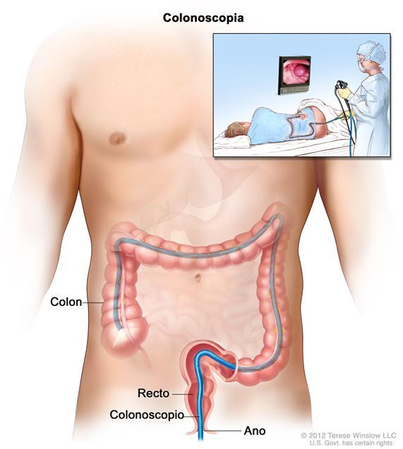 Colonoscopia; muestra un colonoscopio que se inserta a través del ano y el recto hacia el colon. El recuadro interior muestra la imagen de un paciente en camilla al que se le realiza una colonoscopia.