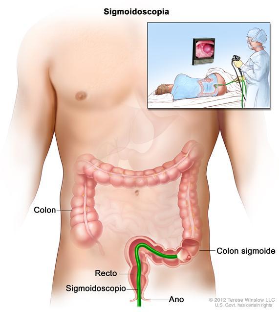 Sigmoidoscopia; muestra un sigmoidoscopio que se inserta a través del ano y el recto hacia el colon sigmoide.  El recuadro interior muestra la imagen de un paciente en camilla al que se le realiza una sigmoidoscopía.