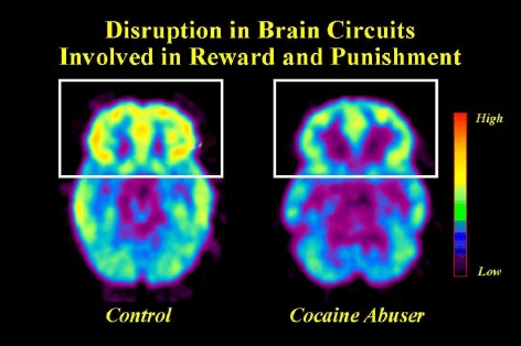 PET scan showing reduced activity in the front area of the brain involved in Reward and Punishment in Cocaine abusers versus control subjects