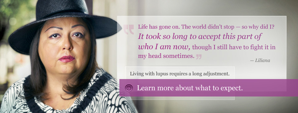 Living with lupus requires a long adjustment. Learn more about what to expect.