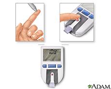 Ilustración de una prueba de sangre usando un monitor de glucosa