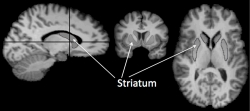 Brain striatum