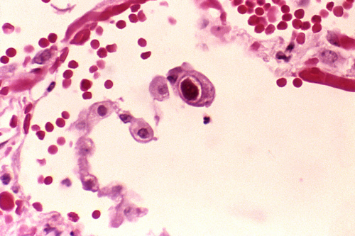 Image description: This photomicrograph shows human lung cells infected with cytomegalovirus, a common pathogen that is particularly dangerous for infants and persons with weakened immune systems. The large dark red massin the center is the cell that shows the virus particles in its nucleus. Learn how the National Institute of Standards and Technology is helping diagnose and treat cytomegalovirus. Photo by E.P. Ewing, Centers for Disease Control and Prevention