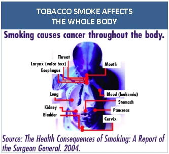 Tobacco smoke effects the whole body. Diagram shows the damage of smoking throughout the body.