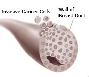 Illustration of a breast duct showing the wall of the breast duct and invasive cancer cells)