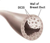 Illustration of a breast duct showing the wall of the breast duct and a ductal carcinoma in situ (DCIS)