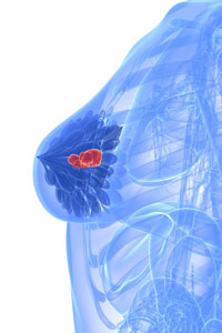 diagram of a breast showing a tumor