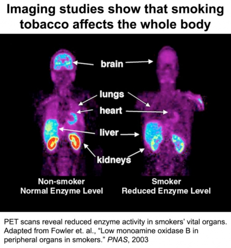 Imaging studies show that smoking tobacco affects the whole body image