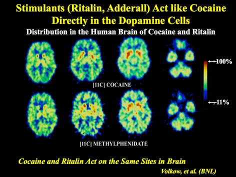 Brain scan images. Stimulants (Ritalin, Adderall) Act like Cocaine Directly in the Dopamine Cells. Distribution in the Human Brain of Cocaine and Ritalin.