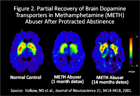 Figure 2. Partial Recovery of Brain Dopamine Transporters in Methamphetamine (METH) Abuser After Protracted Abstinence