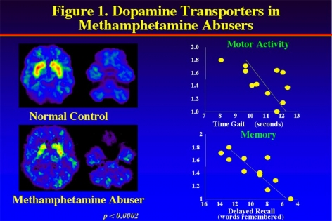 PET image showing decreased activity of dopamine transporters in Methamphetamine abusers