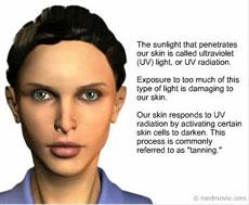 UV Exposure