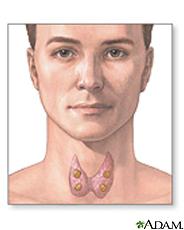 Ilustración de la tiroides y las glándulas paratiroides