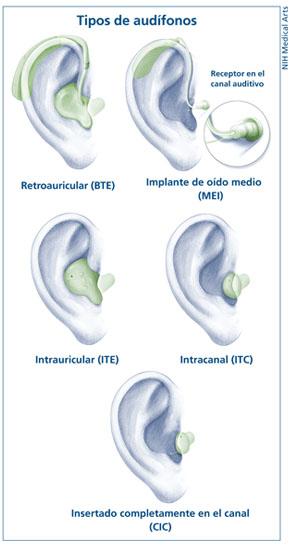 Tipos de audifonos