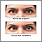 Ojos bizcos (estrabismo)