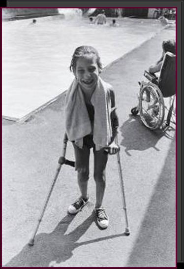 A young girl poolside, supported by hand braces.