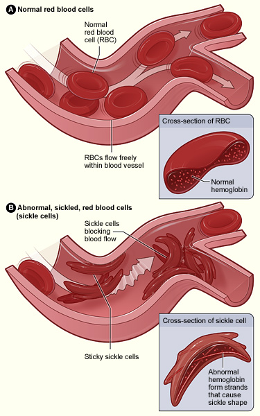 Figure A shows normal red blood cells flowing freely in a blood vessel. The inset image shows a cross-section of a normal red blood cell with normal hemoglobin. Figure B shows abnormal, sickled red blood cells blocking blood flow in a blood vessel. The inset image shows a cross-section of a sickle cell with abnormal (sickle) hemoglobin forming abnormal strands.