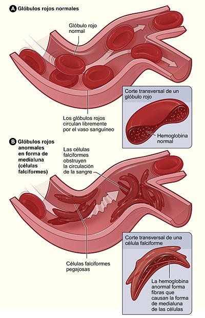 La figura A muestra glóbulos rojos normales que circulan libremente en un vaso sanguíneo. Dentro del recuadro se observa un corte transversal de un glóbulo rojo normal que contiene hemoglobina normal. La figura B muestra células falciformes que forman un grupo y se atascan en un vaso sanguíneo. (Es posible que otras células también participen en este proceso). Dentro del recuadro se observa un corte transversal de una célula falciforme que contiene hemoglobina anormal.