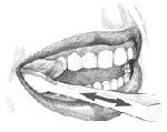 Illustration of brushing teeth at an angle.