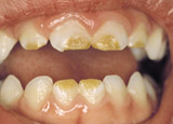 Photo of developmental defects in the mouth