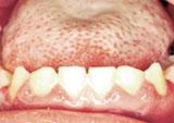 Photo of severe periodontal disease