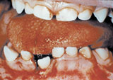 Photo of mouth with oral trauma