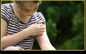 Una niña muestra una picadura de mosquito