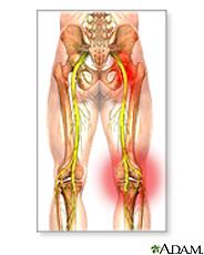 Illustration of sciatic nerve damage