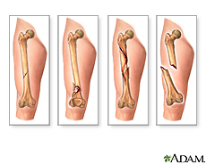 Illustration of fracture types