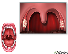 Illustration of the mouth showing symptoms of strep throat