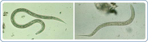 Left: Filariform (L3) hookworm larva in a wet mount. Right: Hookworm rhabditiform larva (wet preparation).