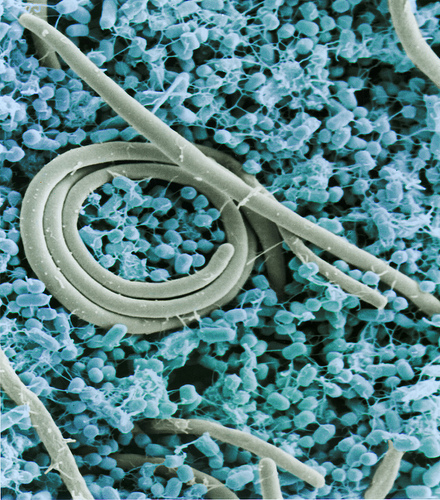 Colorized SEM (scanning electron micrograph) of the foodborne pathogen Salmonella enteritidis. Photo by Jean Guard, ARS.