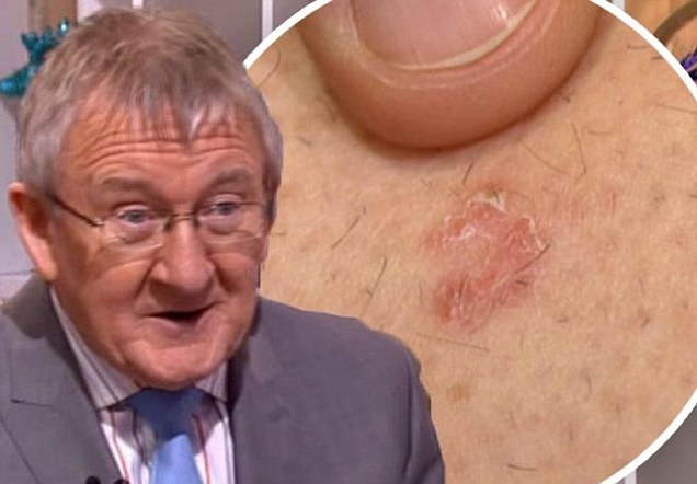 This Morning doctor Chris Steele reveals he has been diagnosed with skin cancer for the second time