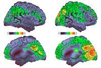 illustration of brain activity