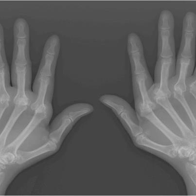 Photo: About 1.5 million people in the US suffer from rheumatoid arthritis (RA). It is a chronic illness in which the immune system, which protects us from viral and bacterial invaders, turns on our own body and viciously attacks the membranes that line our joints. The consequences can be excruciating: pain, swelling, stiffness, and decreased mobility.  Over time, the joints can become permanently contorted, as in this X-ray image.